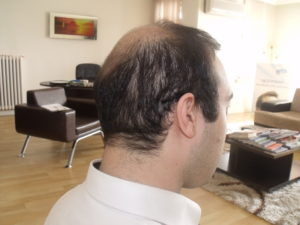 destroyed donor area after fue hair transplant