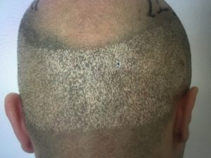Hair Transplant Costs in 2019 | Quality for an affordable