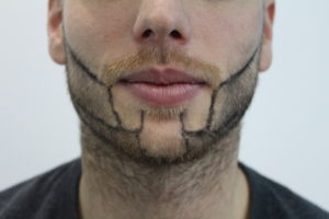 patchy beard