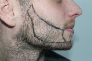 picture patchy beard