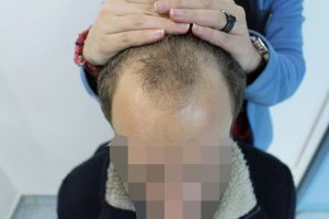 picture Receding Hairline before