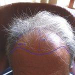 Hair Transplant Before