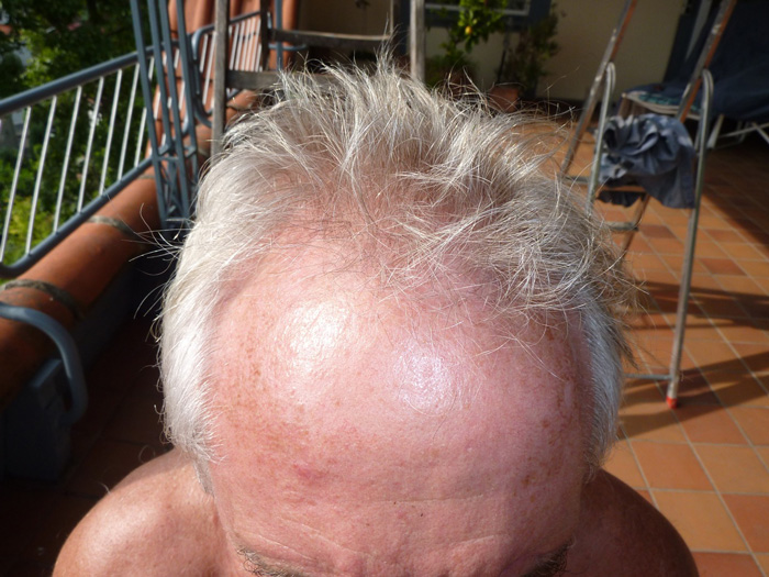 Hair Transplant Before