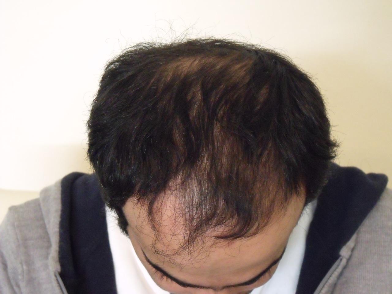 Hair Transplant Help