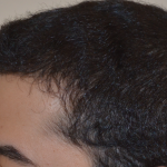 Hair Transplant After 12 Months 4