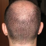 2500 grafts from Donor Scalp