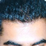 Fue Hair Transplant Info