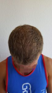 picture Receding Hairline After FUE Hair Transplant