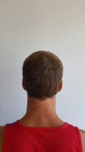 Donor Area after FUE Hair Transplant