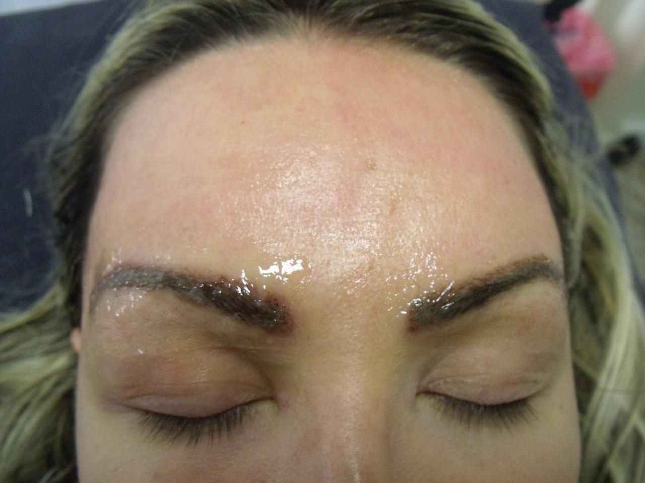 Eyebrow Transplant Postop