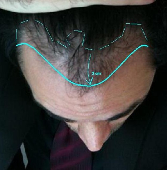 Fue Hair Transplant Turkey