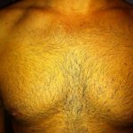 Body Hair After 11 Months