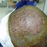 Hair Transplant Repair Bodygrafts