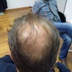 Hair Before Transplant