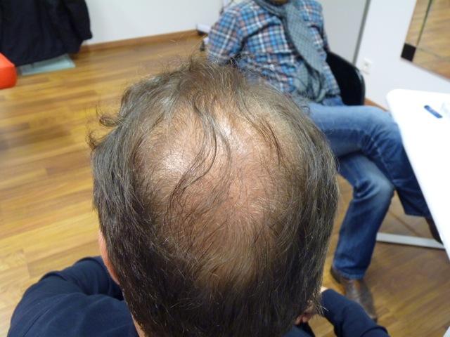 Hair Before Transplant