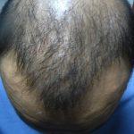 Beste Haartransplantation