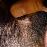 FUE Haartransplantation Kosten