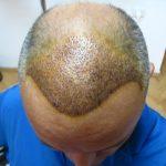 Hair Transplant Ankara