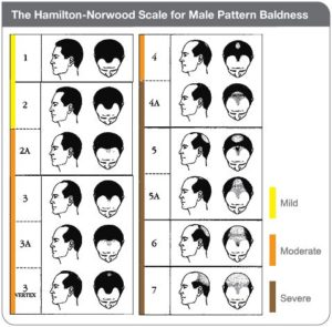 Male pattern Hairloss
