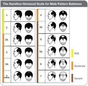 Male pattern Hairloss