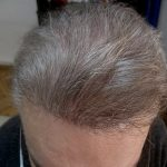 Hair Transplantation Istanbul