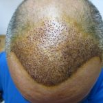 Fue Hair Transplant Turkey