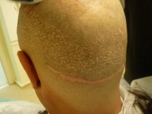 FUT Strip Scar vs poor FUE Extraction
