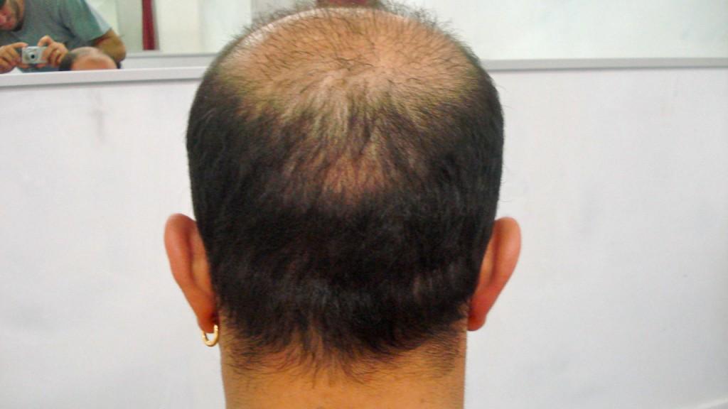 Haartransplantation Beratung