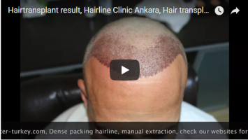 Hair Transplant with Dense Packing
