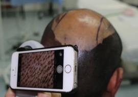 bild haartransplantation beratung