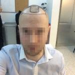 Haartransplantation Resultate