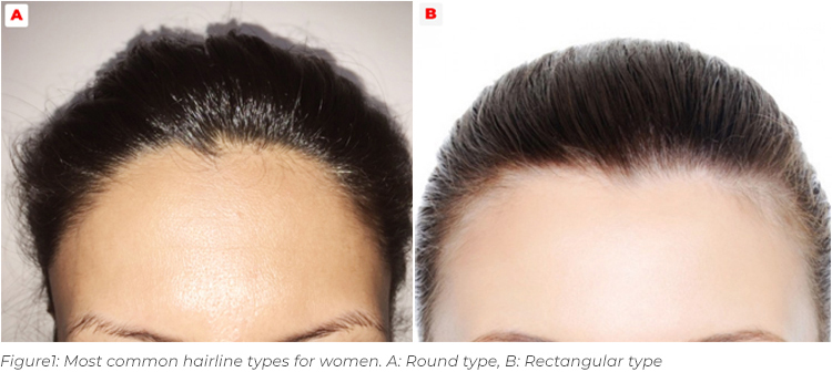 Women Hairline Types Picture Women Hairline