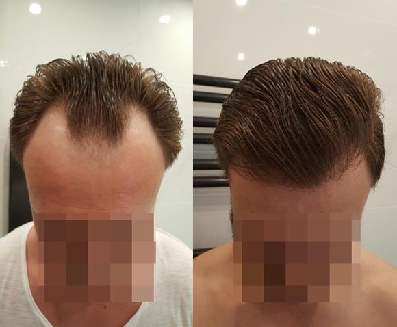 Bild von Haartransplantation vorher nachher