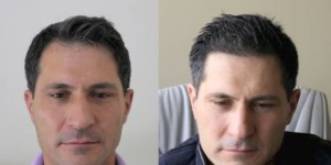 picture of NW2 Hairline, Hairtransplant before and after