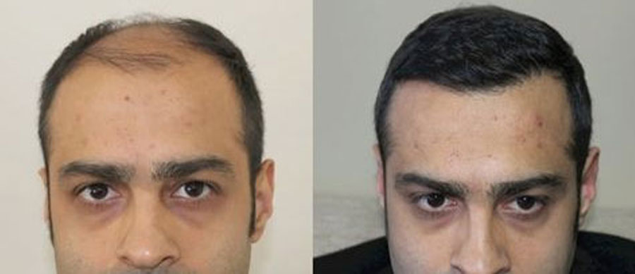 picture of fue hair transplant before and after