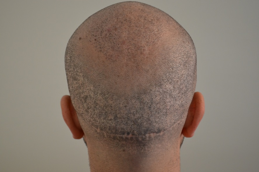 donor area of failed hair transplant