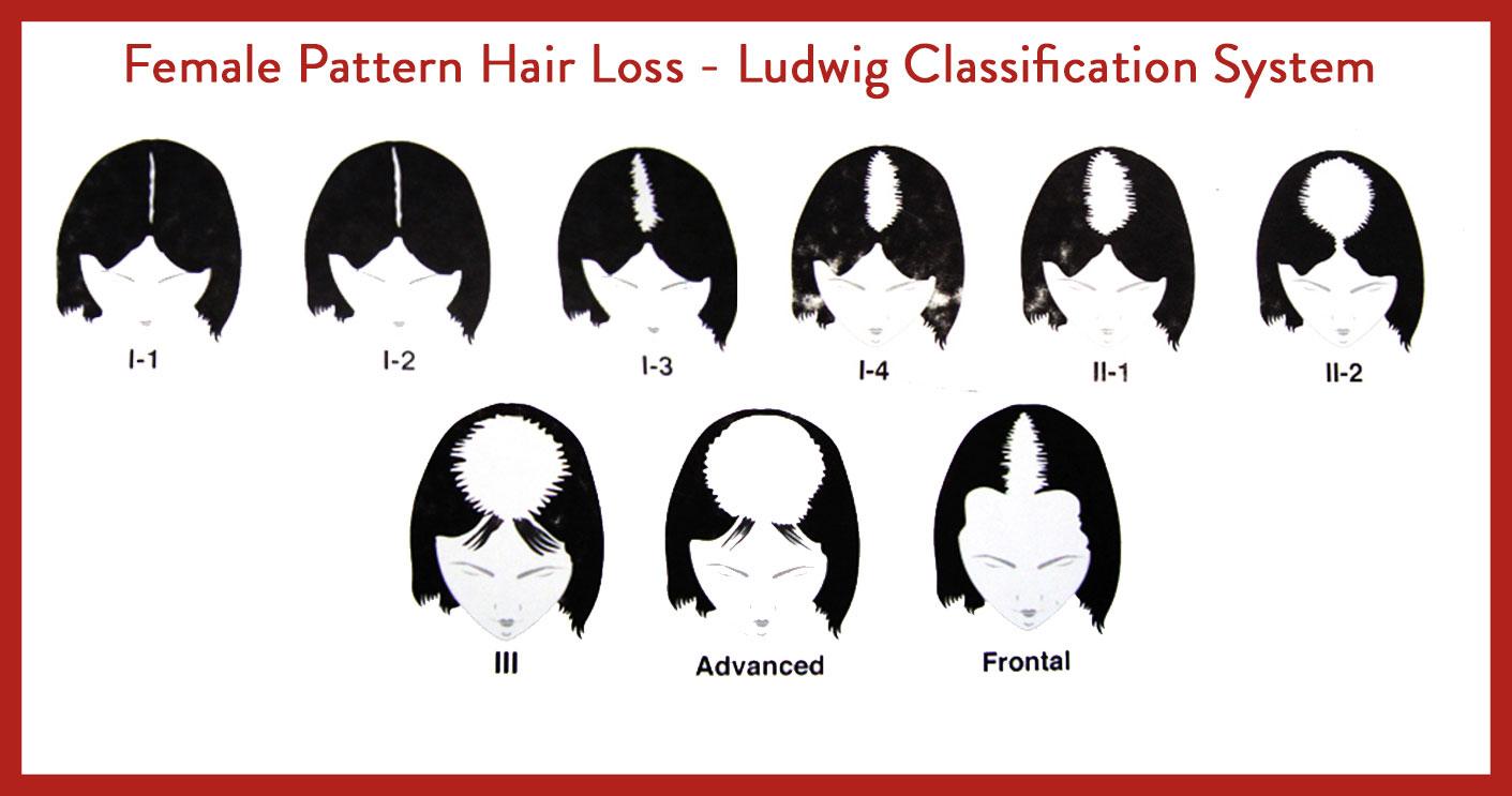 Female Hairloss Pattern