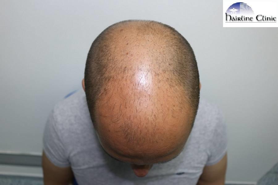 nw 6 hair transplant