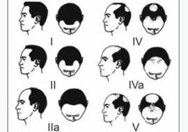 Topical Finasteride The New Hairloss Medication Hair Transplant Turkey